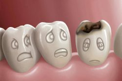 "I denti,  ""i décc"""
